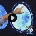 Alzheimer's – UCLA Study