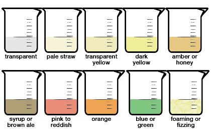 urine-color